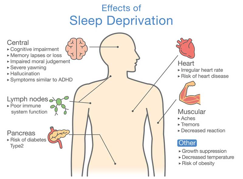 Diagram of Effects of Sleep deprivation