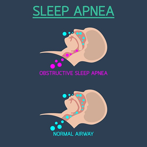 The term apnea comes from a Greek word, meaning absence of breathing