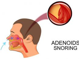 illustration adenoids as causes of snoring
